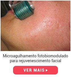 protocolo-de-microagulhamento-rejuvenescedor
