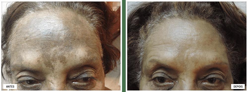 Antes e Depois - Tratamento Manchas Adélia Mendonça