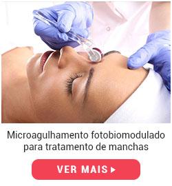 protocolo-microagulhamento-manchas