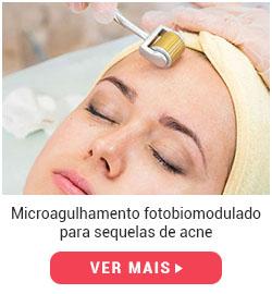 protocolo-microagulhamento-acne